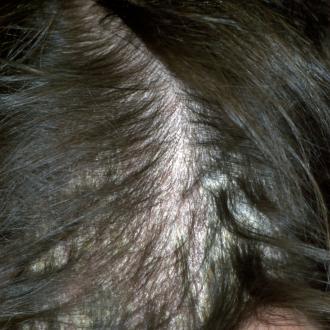 Atemberaubend Psychosomatik Psoriasis der Kopfhaut &XG_68