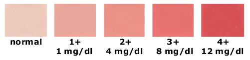 farbe des urins
