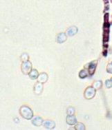 Diagnose der Candida-Endomykose - Übersicht
